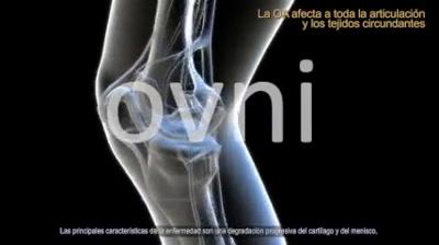 Vidéo Ovni - Medical (ES)